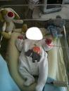 bébé a l'opital